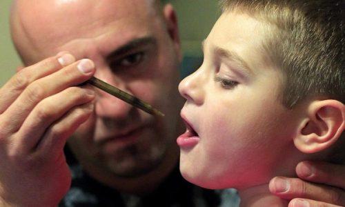 In Usa 125 bambini affetti da epilessia ricevono già il farmaco sperimentale a base di cannabidiolo (CBD)